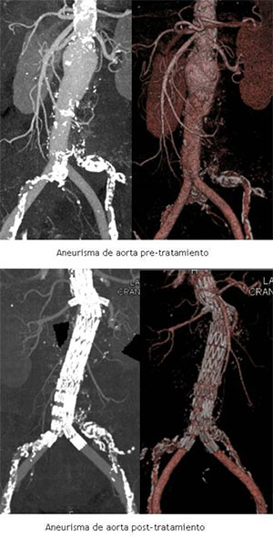 Aneurisma de aorta abdominal, pre y post tratamiento