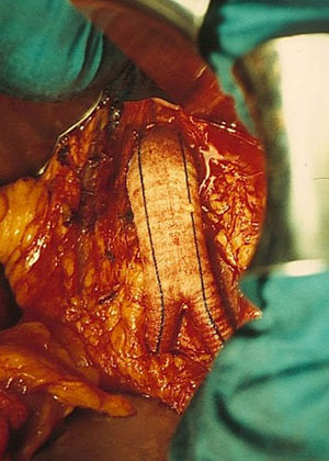 Cirugia aorta vascular arterial