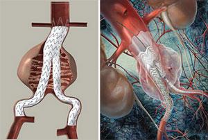 Diferentes modelos de endoprótesis aórticas