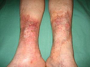 Mejoría cutánea ambas piernas