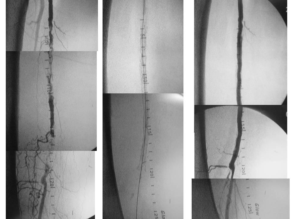Recanalizacion endovascular compleja mediante Stent