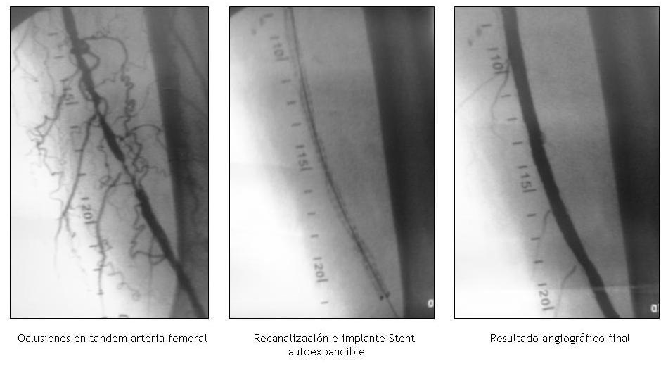 Obstrucción / Estrechamiento arterial pierna
