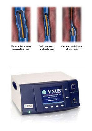 Tratamiento minimamente invasivo de las varices con radiofrecuencia VENEFIT (VNUS ClosureFAST)