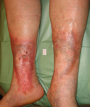 El vendaje de los pies después de la operación a las venas
