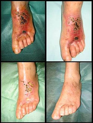 Pie diabético con úlceras necróticas. Respuesta al tratamiento con ozonoterapia